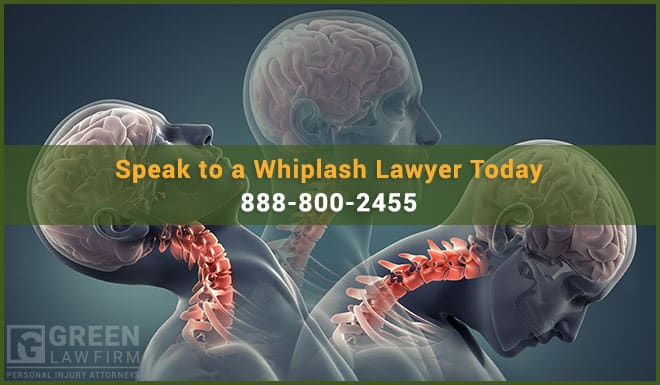 South Carolina Whiplash Lawyer