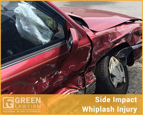Side Impact Whiplash Injury